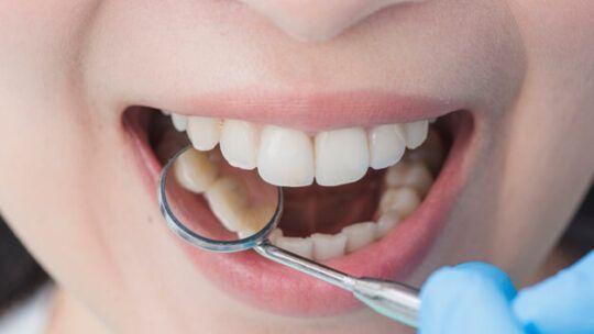 Prótese Dentaria é Dentadura?